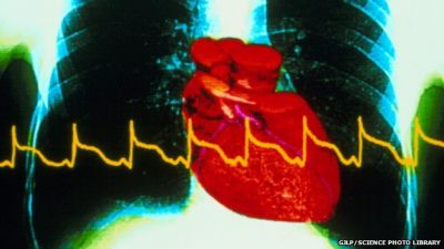 New test could detect twice as many heart attacks in women