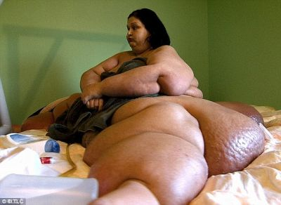 A woman lost 360 kg PHOTO