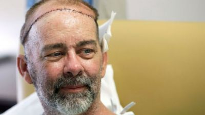First skull and scalp transplant done by doctors