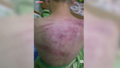 В детдоме воспитательница избила мальчика-инвалида