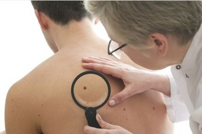 Arm mole count could indicate skin cancer risk STUDY