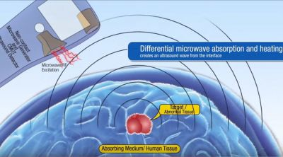 Ultrasound and  microwave 'tricorder' being tested  to detect tumors remotely RESEARCH