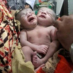 Conjoined twins die in Bangladesh