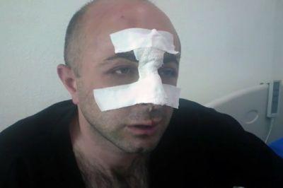 """""""DQR""""də """"deputatlar"""" vəhşicəsinə döyülür İNSİDENT"""