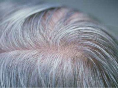Saçların ağarması: qadınlar və kişilərdə