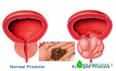 Prostat vəzinin ən sadə və ən keyfiyyətli təbii bitkilərlə müalicəsi