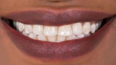Britaniya alimləri: Dişləri plombsuz müalicə etmək mümkündür